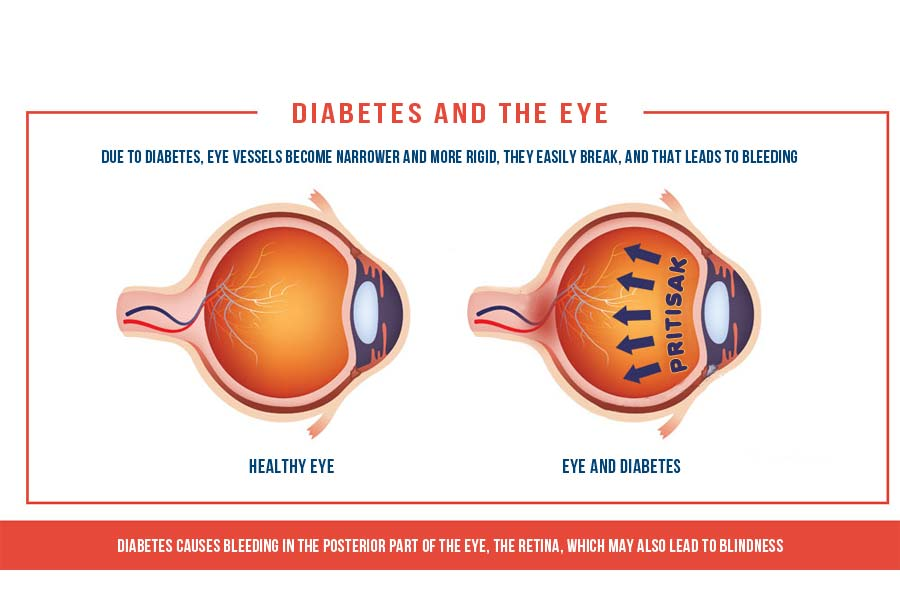 Diabetes can be the cause of cataracts on the eye