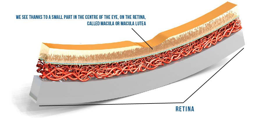 Senile macular degeneration is a disease which is significantly increasing due to longer lifespan